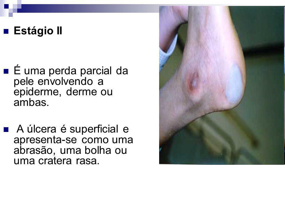 Estágio II É uma perda parcial da pele envolvendo a epiderme, derme ou ambas.