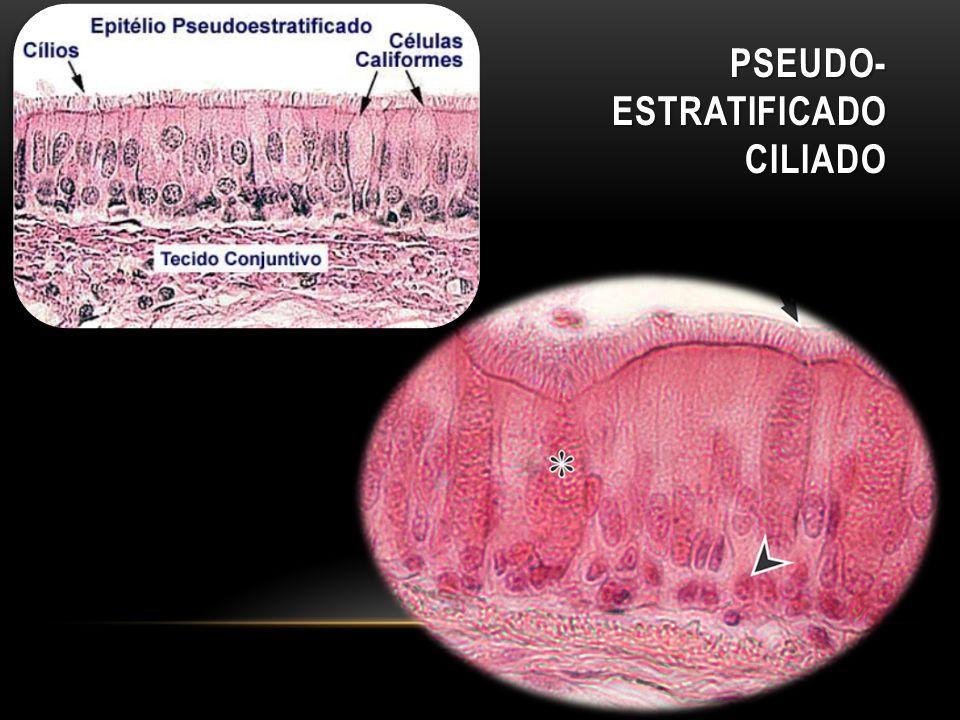 Pseudo-Estratificado ciliado