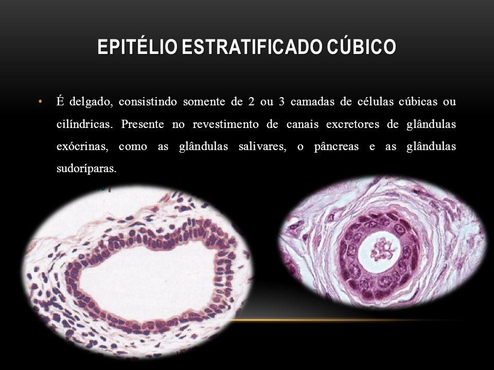 Epitélio estratificado cúbico