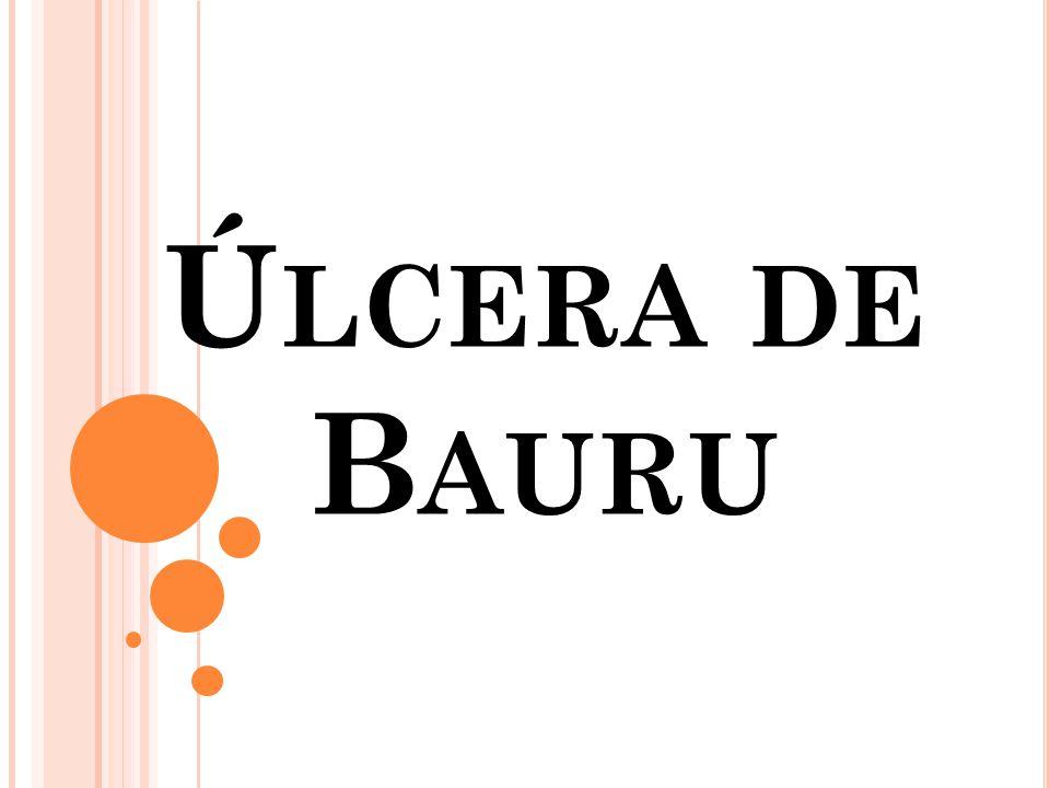 Úlcera de Bauru