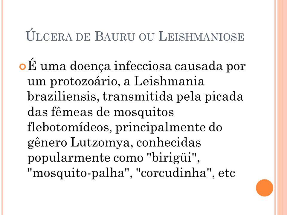 Úlcera de Bauru ou Leishmaniose