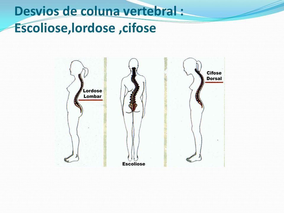 Desvios de coluna vertebral : Escoliose,lordose ,cifose