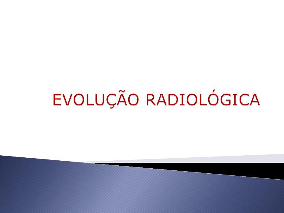 EVOLUÇÃO RADIOLÓGICA