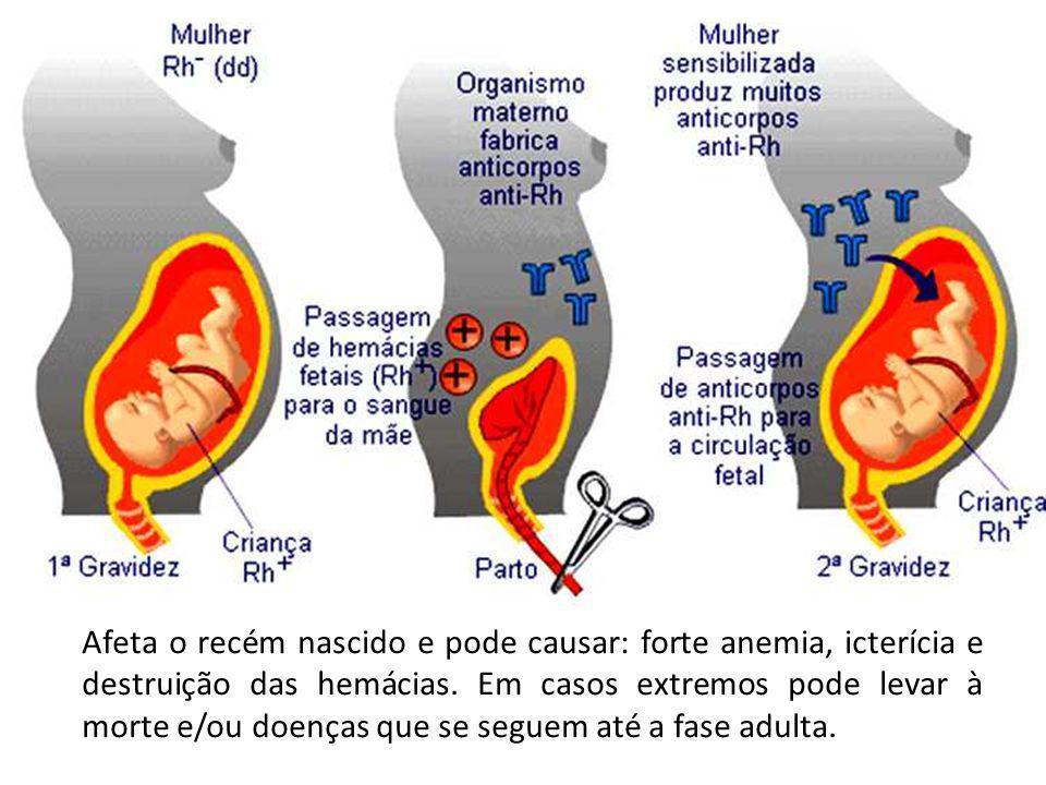 Afeta o recém nascido e pode causar: forte anemia, icterícia e destruição das hemácias.