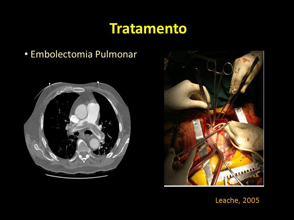 Tratamento Embolectomia Pulmonar Leache, 2005