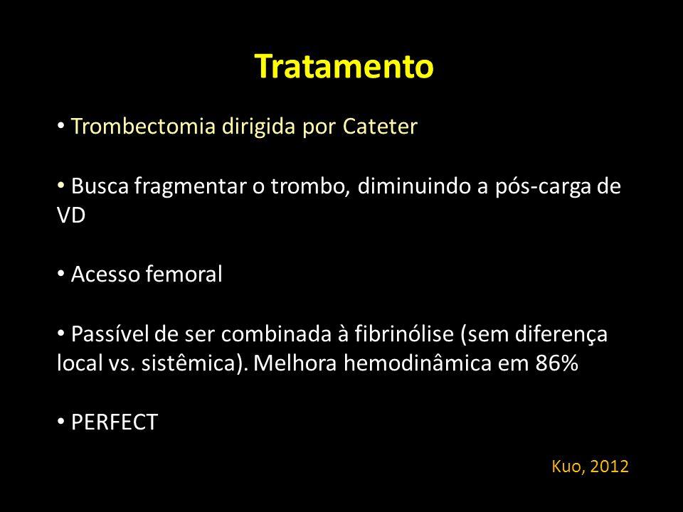 Tratamento Trombectomia dirigida por Cateter