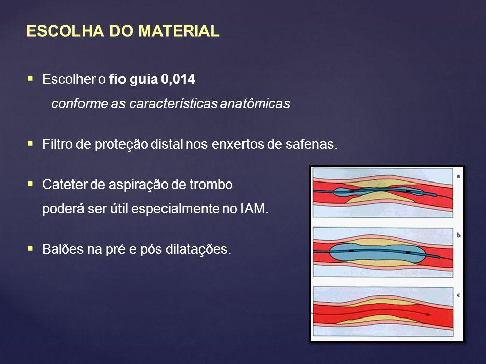 ESCOLHA DO MATERIAL Escolher o fio guia 0,014