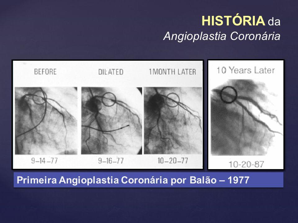 HISTÓRIA da Angioplastia Coronária