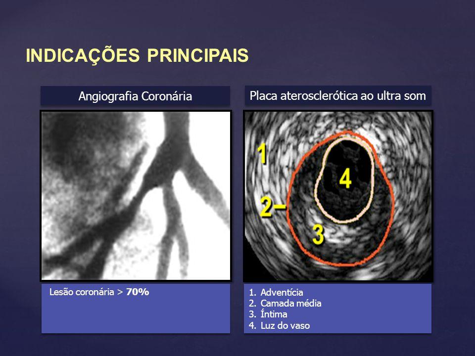 Angiografia Coronária