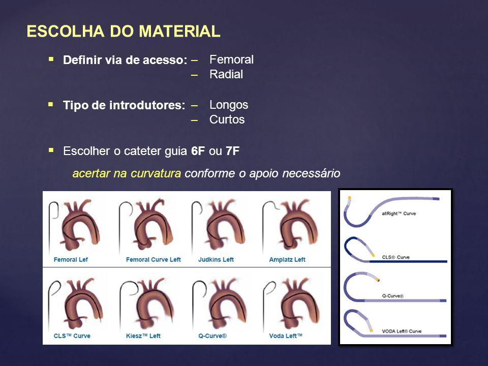 ESCOLHA DO MATERIAL Definir via de acesso: Femoral Radial