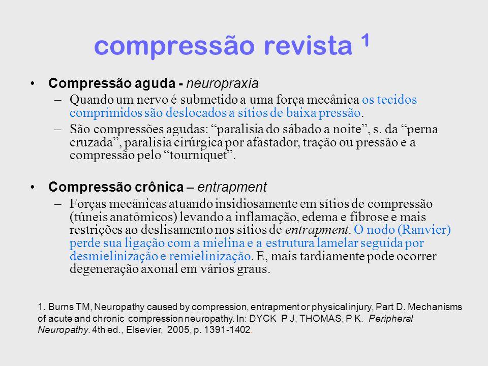 compressão revista 1 Compressão aguda - neuropraxia