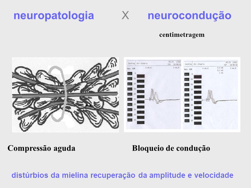 neuropatologia X neurocondução