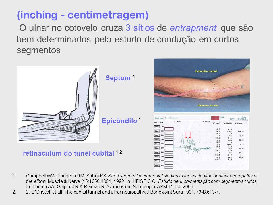 (inching - centimetragem) O ulnar no cotovelo cruza 3 sítios de entrapment que são bem determinados pelo estudo de condução em curtos segmentos