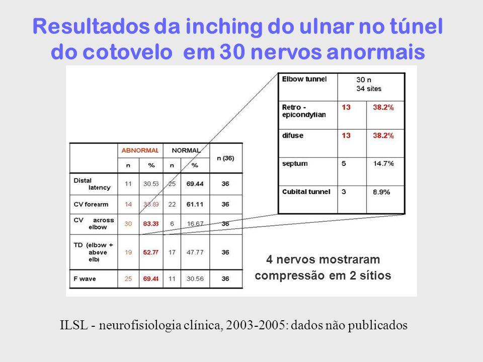 4 nervos mostraram compressão em 2 sítios