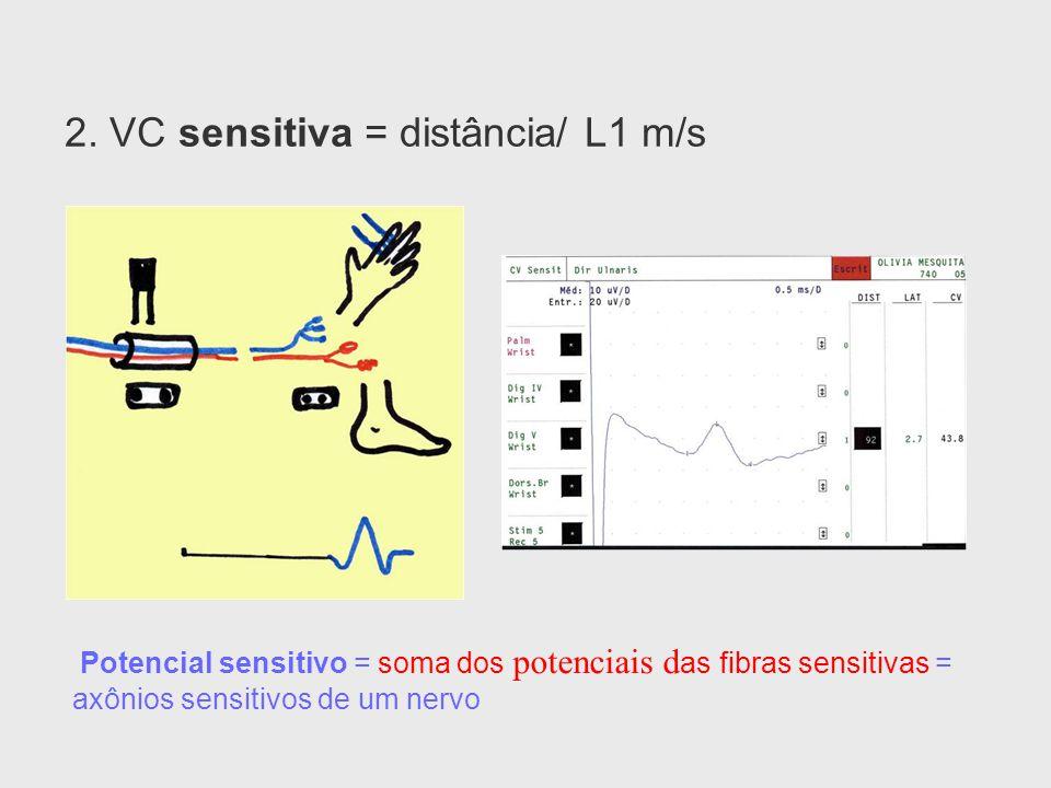 2. VC sensitiva = distância/ L1 m/s