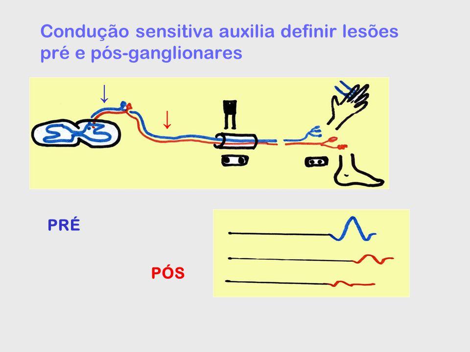 Condução sensitiva auxilia definir lesões pré e pós-ganglionares