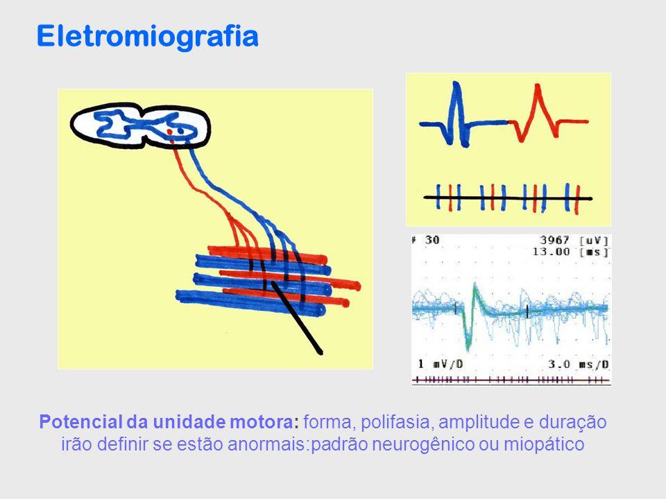Eletromiografia Potencial da unidade motora: forma, polifasia, amplitude e duração irão definir se estão anormais:padrão neurogênico ou miopático.