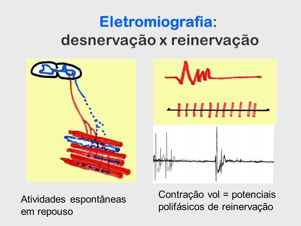 Eletromiografia: desnervação x reinervação