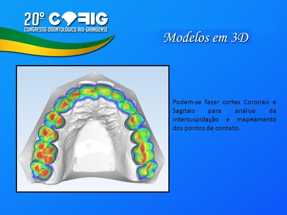 Podem-se fazer cortes Coronais e Sagitais para análise da intercuspidação e mapeamento dos pontos de contato.