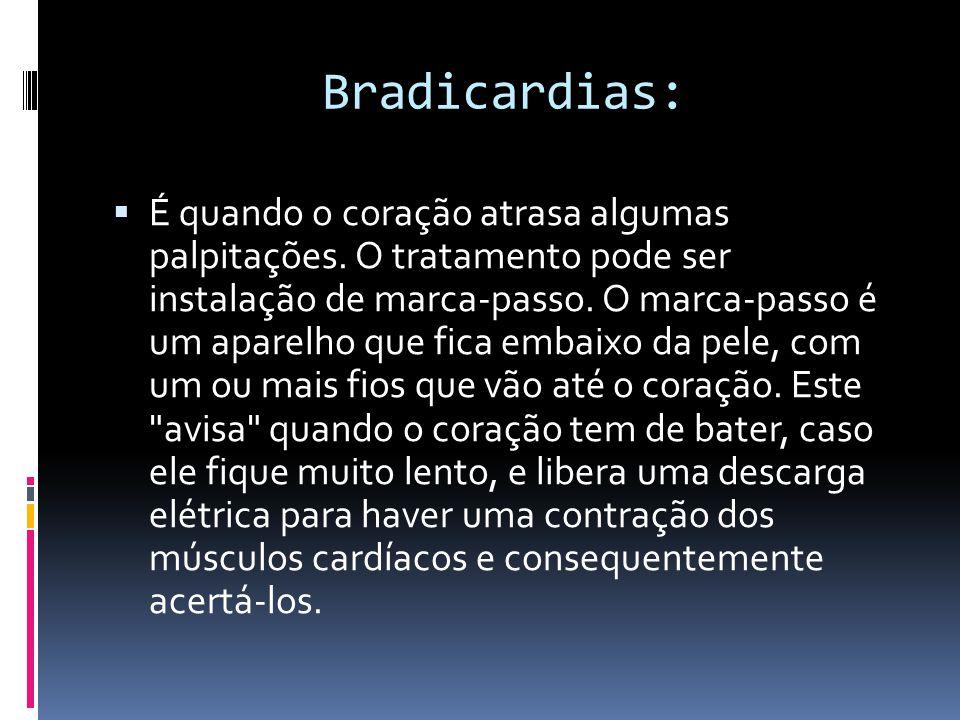 Bradicardias:
