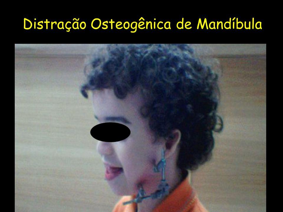 Distração Osteogênica de Mandíbula
