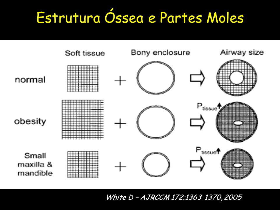 Estrutura Óssea e Partes Moles