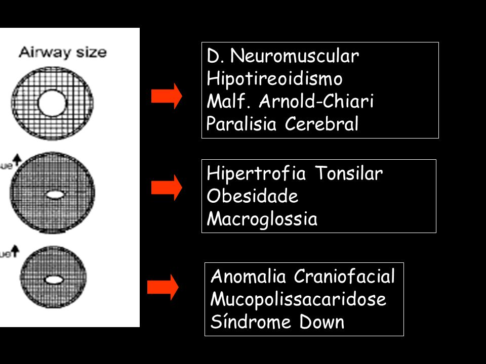 D. Neuromuscular Hipotireoidismo. Malf. Arnold-Chiari. Paralisia Cerebral. Hipertrofia Tonsilar.