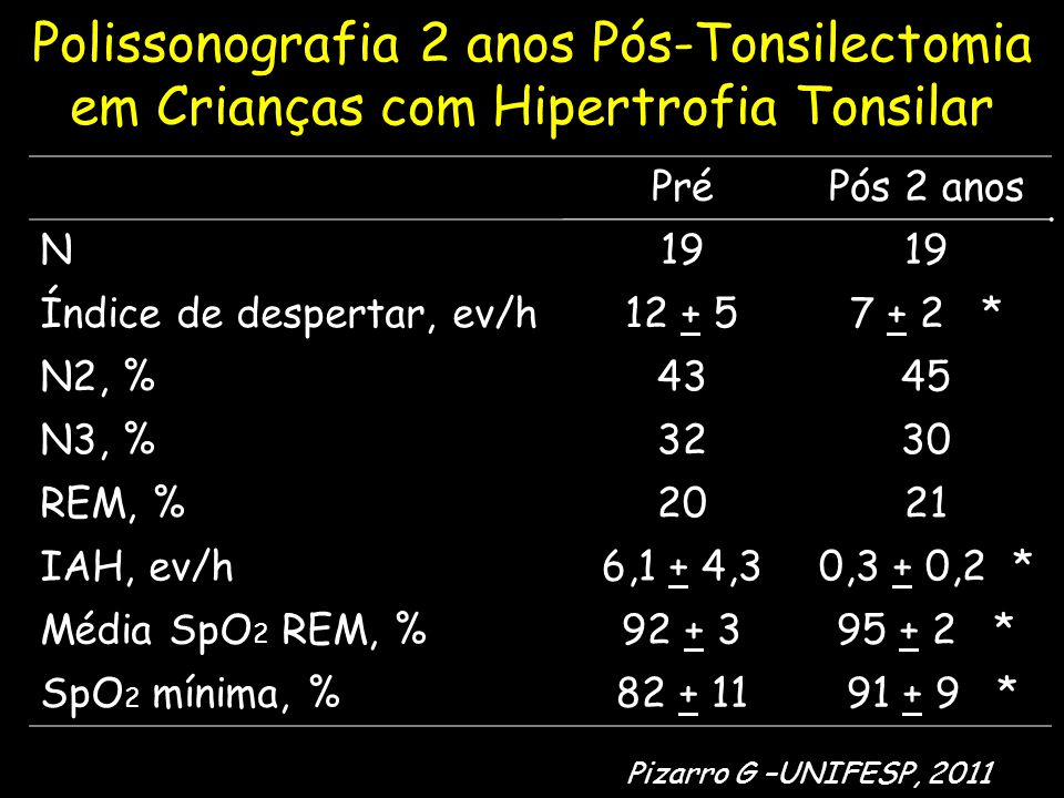 Polissonografia 2 anos Pós-Tonsilectomia em Crianças com Hipertrofia Tonsilar