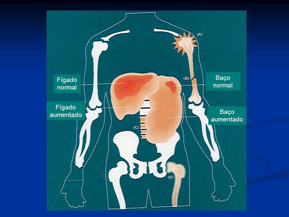 Baço normal Fígado normal Fígado aumentado Baço aumentado