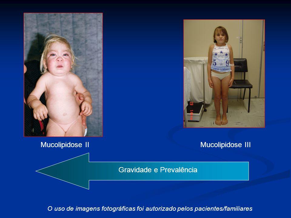 - + Mucolipidose II Mucolipidose III C) Gravidade e Prevalência