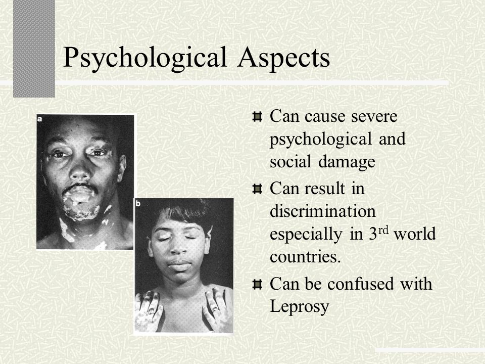 Psychological Aspects