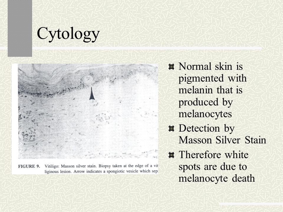 Cytology Normal skin is pigmented with melanin that is produced by melanocytes. Detection by Masson Silver Stain.