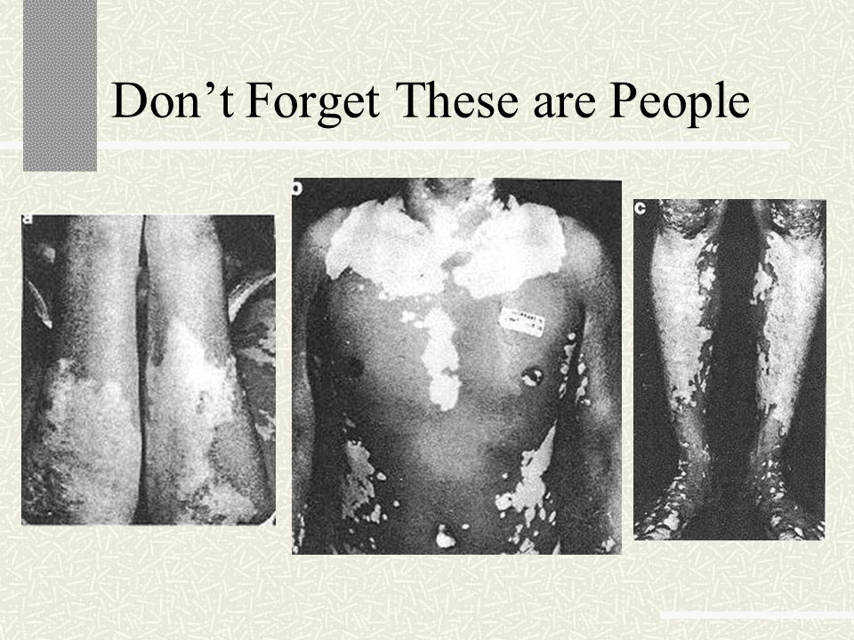 Don't Forget These are People