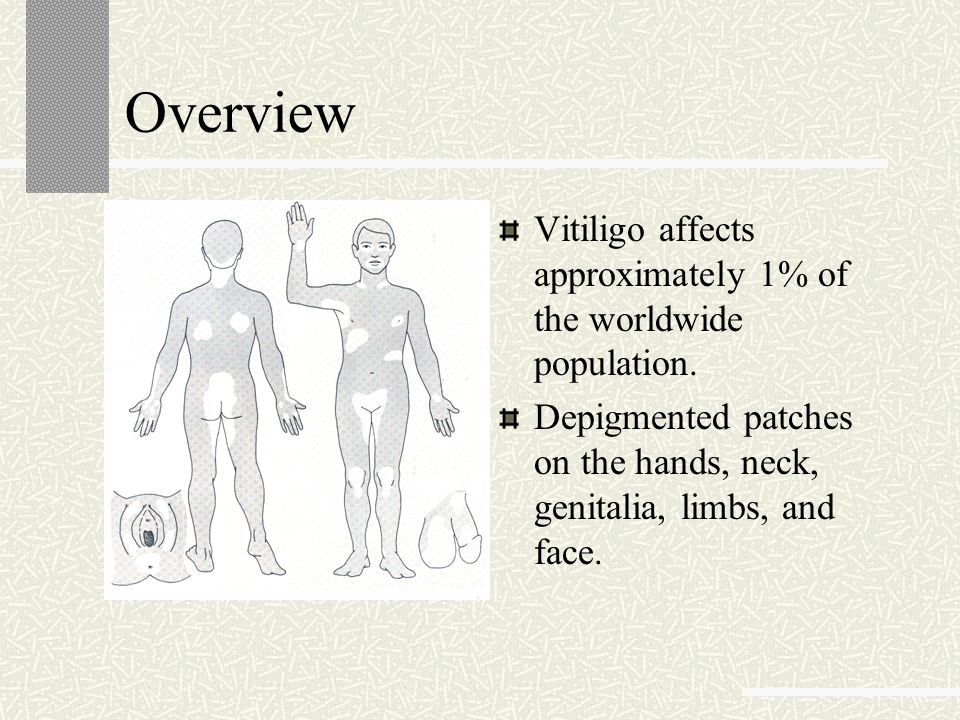 Overview Vitiligo affects approximately 1% of the worldwide population.