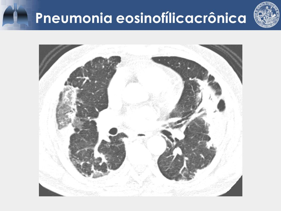 Pneumonia eosinofílicacrônica