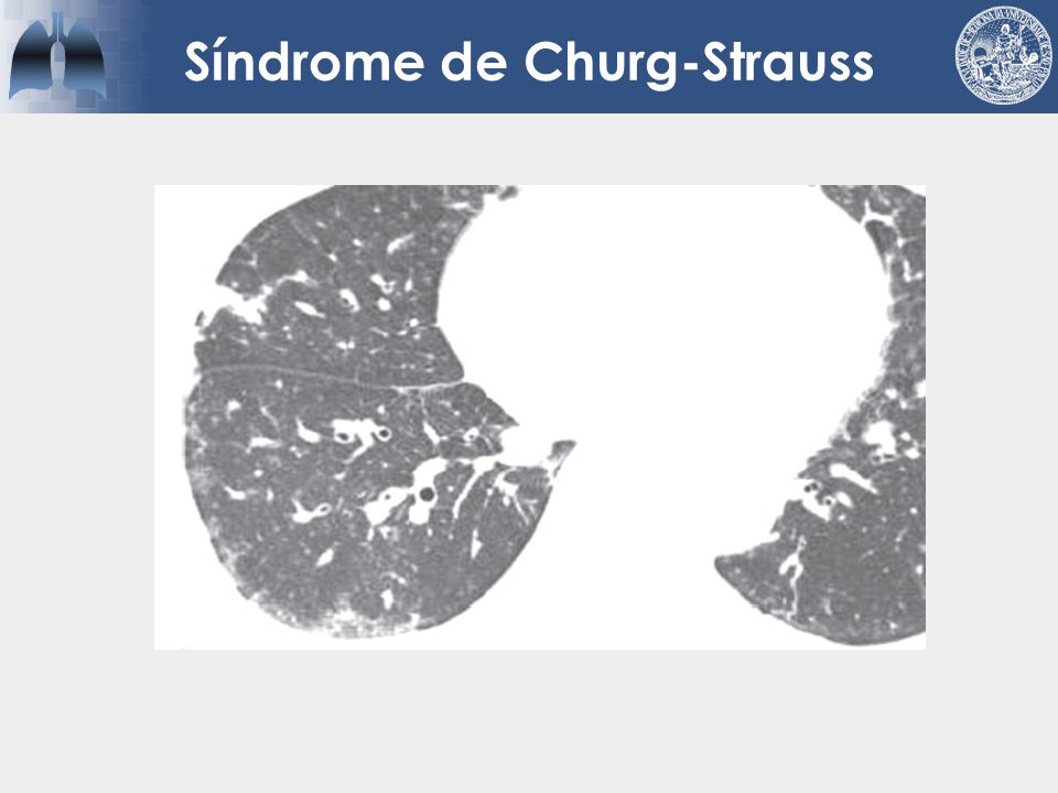 Síndrome de Churg-Strauss