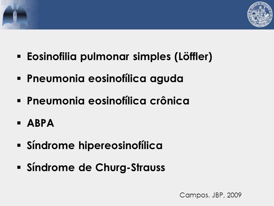Eosinofilia pulmonar simples (Löffler) Pneumonia eosinofílica aguda