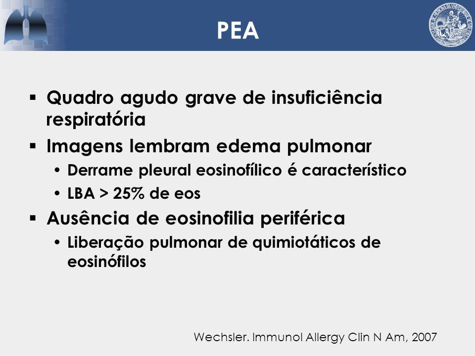 PEA Quadro agudo grave de insuficiência respiratória