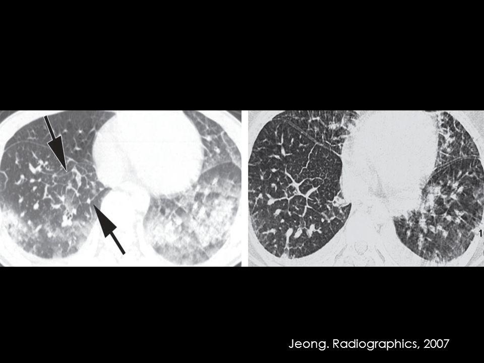 Jeong. Radiographics, 2007