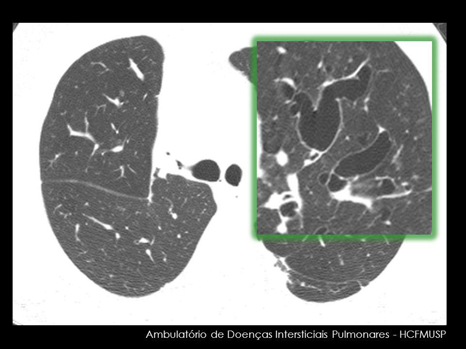 Ambulatório de Doenças Intersticiais Pulmonares - HCFMUSP