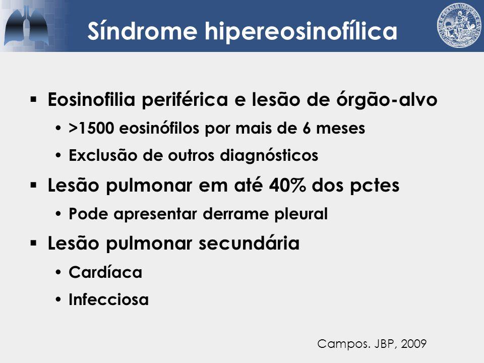 Síndrome hipereosinofílica