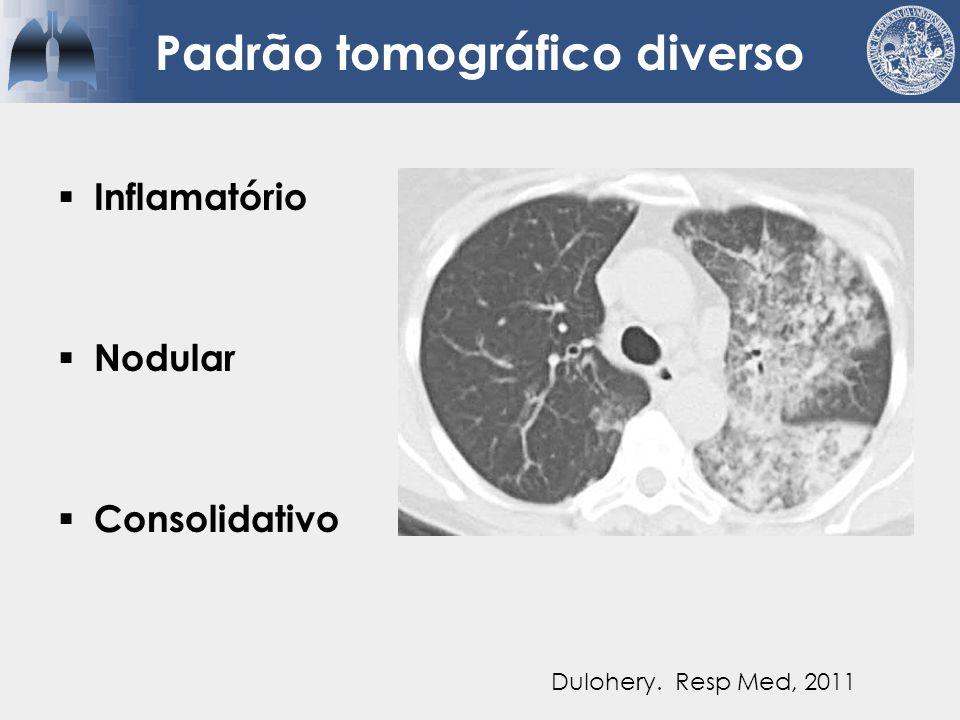 Padrão tomográfico diverso