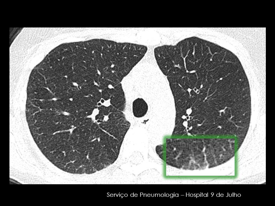 Serviço de Pneumologia – Hospital 9 de Julho