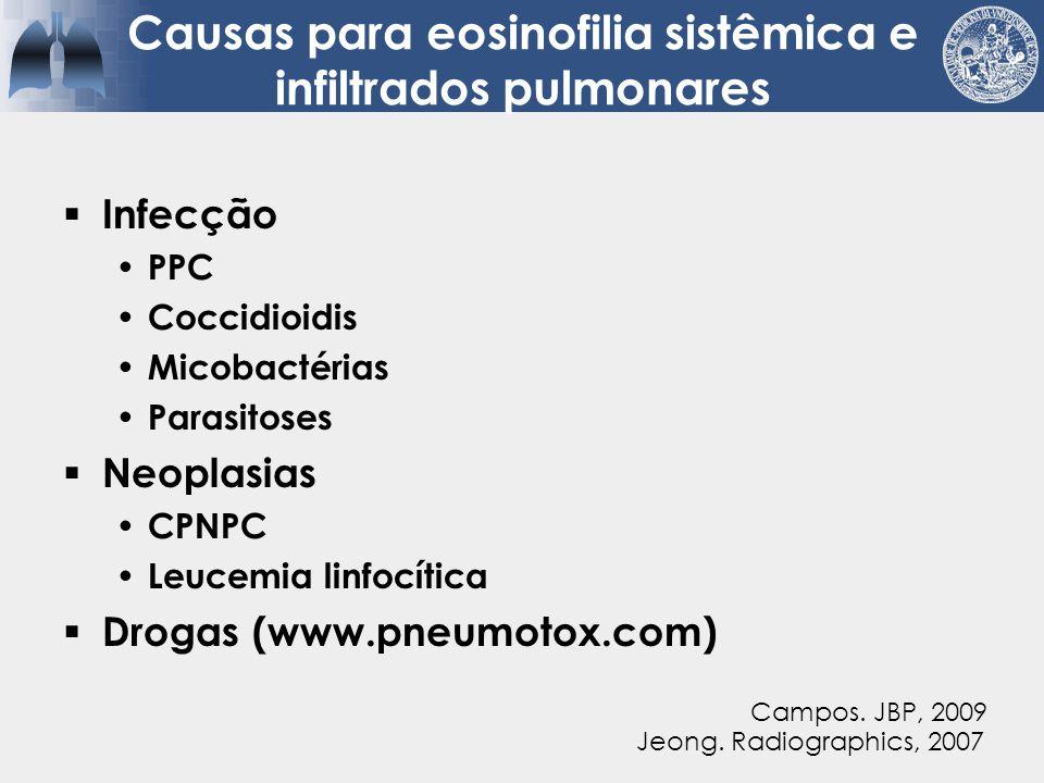 Causas para eosinofilia sistêmica e infiltrados pulmonares
