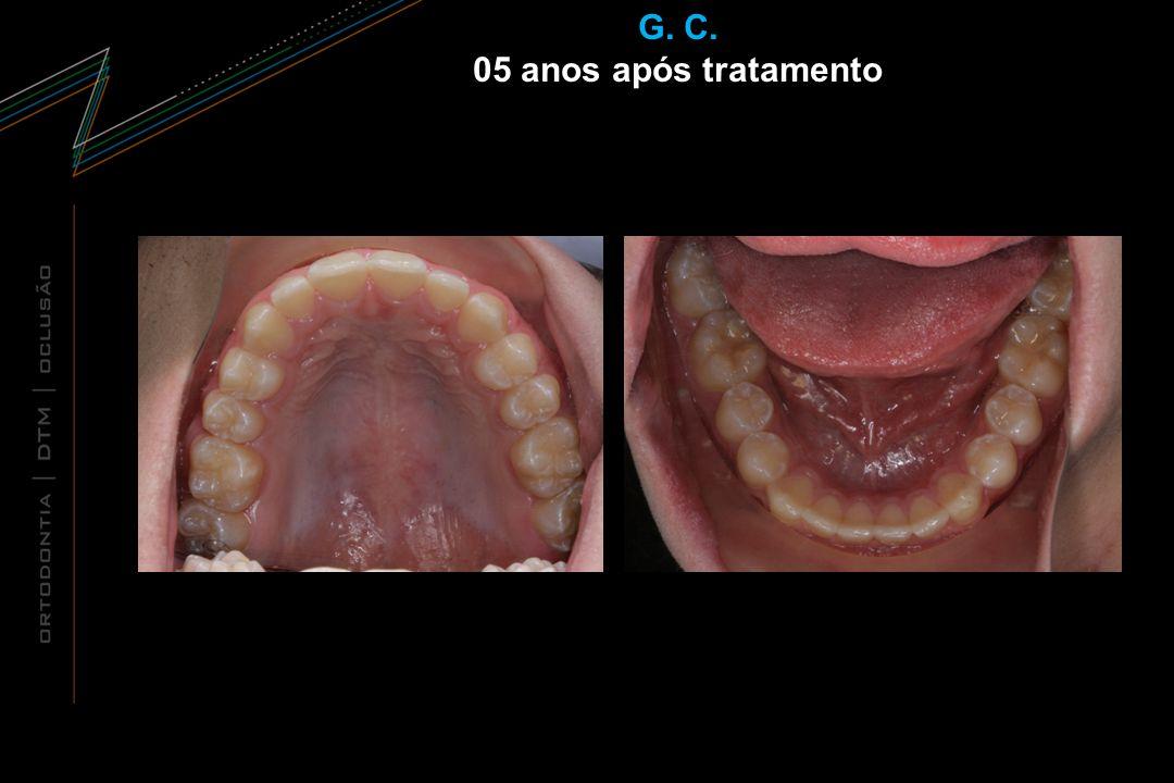 G. C. 05 anos após tratamento