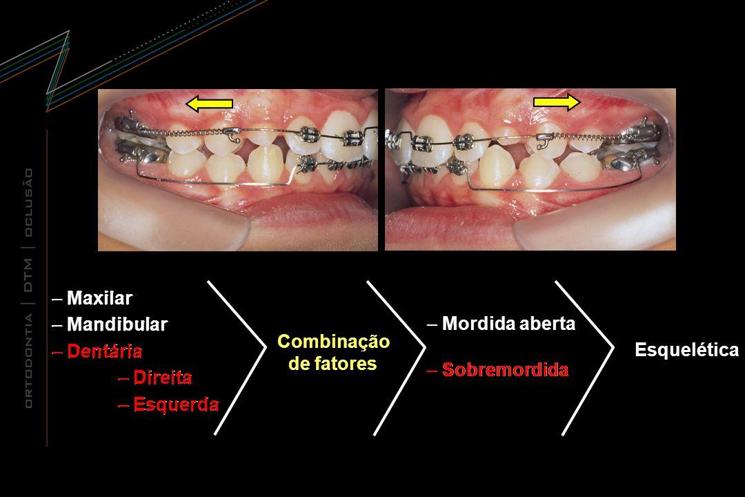 Mordida aberta Sobremordida. Maxilar. Mandibular. Dentária. Direita. Esquerda. Maxilar. Mandibular.