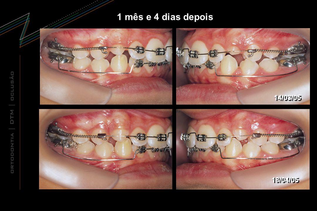 1 mês e 4 dias depois 14/03/05 18/04/05