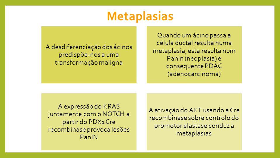 Metaplasias A desdiferenciação dos ácinos predispõe-nos a uma transformação maligna.