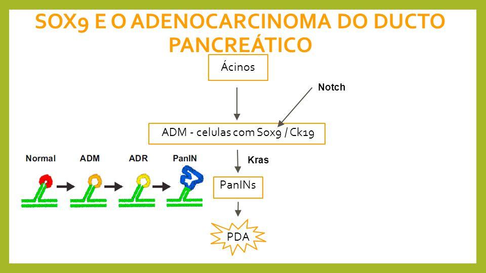 SOX9 E O ADENOCARCINOMA DO DUCTO PANCREÁTICO