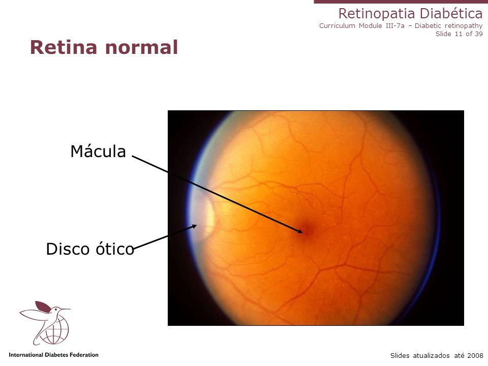 Retina normal Mácula Disco ótico